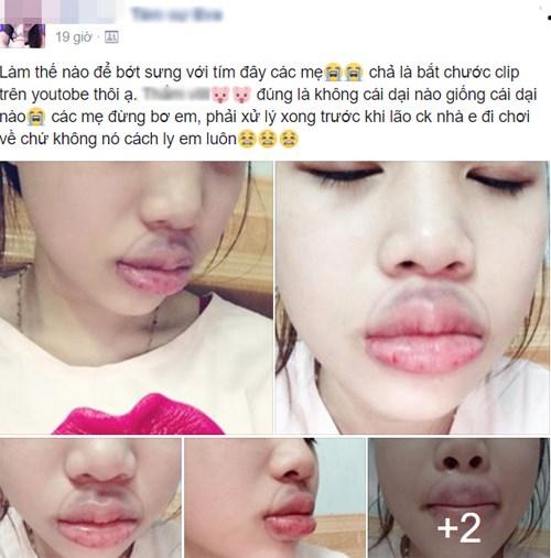 Hậu quả của việc bắt chước video làm đẹp trên mạng, cô gái bị sưng tím miệng
