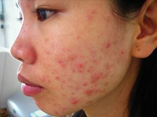 5 bước chăm sóc da sau khi nặn mụn để hạn chế tối đa sẹo thâm